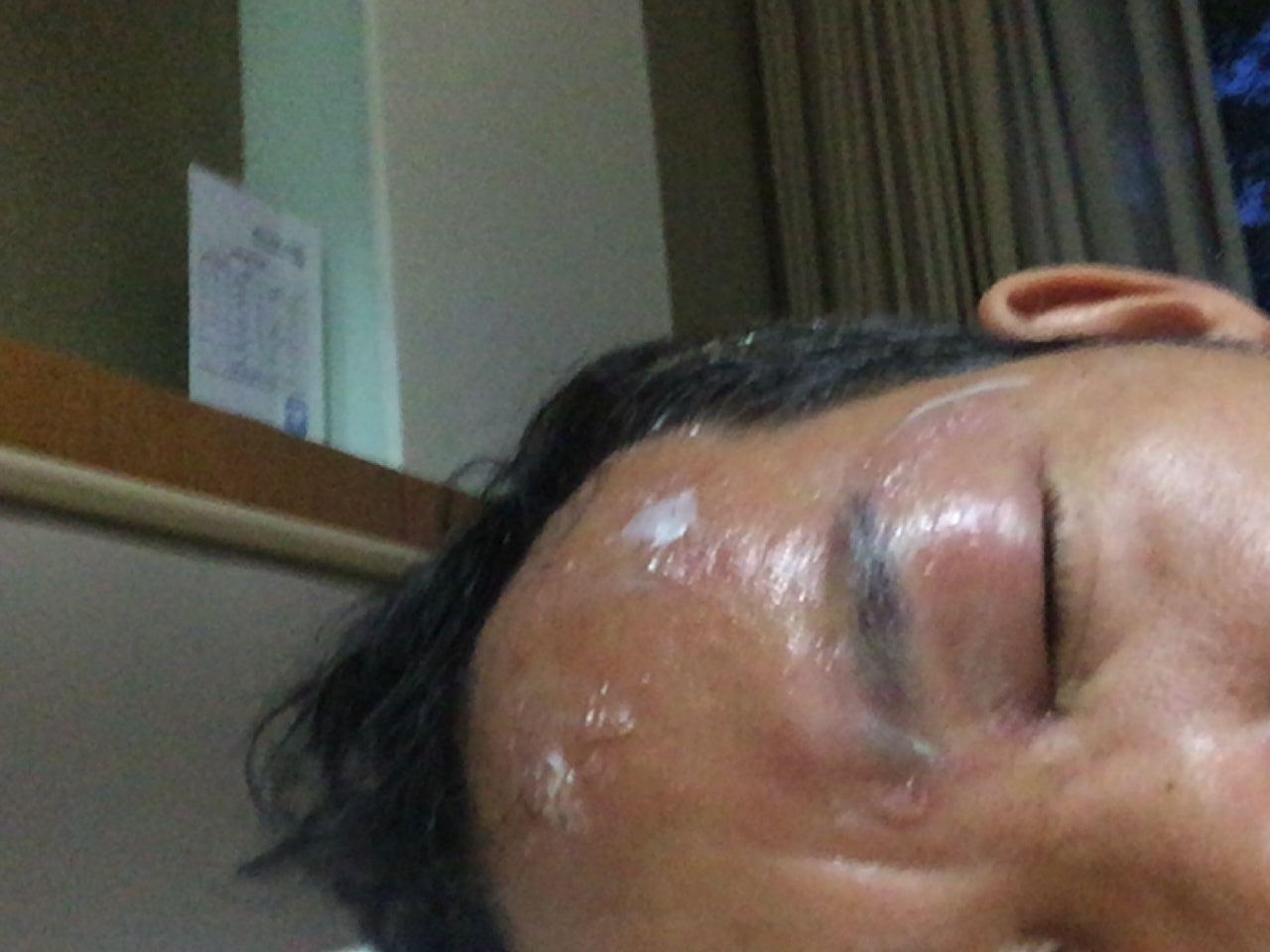 疱疹 痛み だけ 帯状